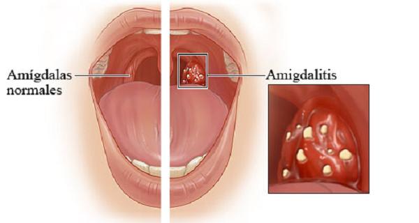 Антибиотик-спрей для горла часто назначают при ангине — острой форме тонзиллита