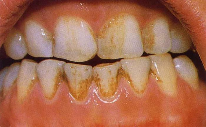 Иногда частое полоскание препаратом приводит к потемнению зубной эмали