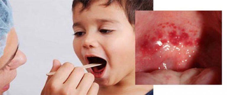 Появление пузырьков с жидкостью (везикул) на задней стенке глотки, мягком небе, язычке и миндалинах (на фото) – это один из признаков герпесной ангины у ребенка