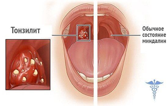 Внешне патологический процесс при фолликулярной ангине проявляется в виде просвечивающих через воспаленную слизистую небольших беловато – желтых гнойников, напоминающих просяные зерна (на фото)