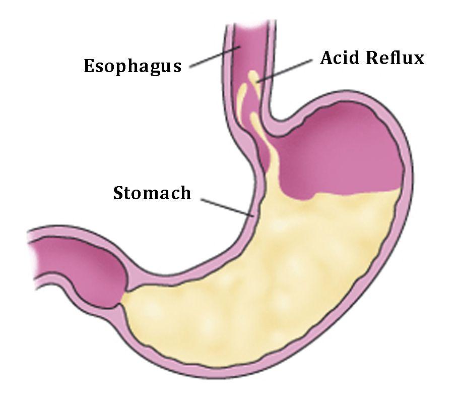 Заброс кислого желудочного содержимого раздражает внутреннюю стенку пищевода и вызывает воспаление