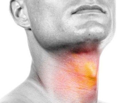 Боли при онкологии горла и гортани появляются на поздних стадиях