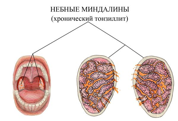 Что происходит с тканью миндалин при хроническом течении процесса.