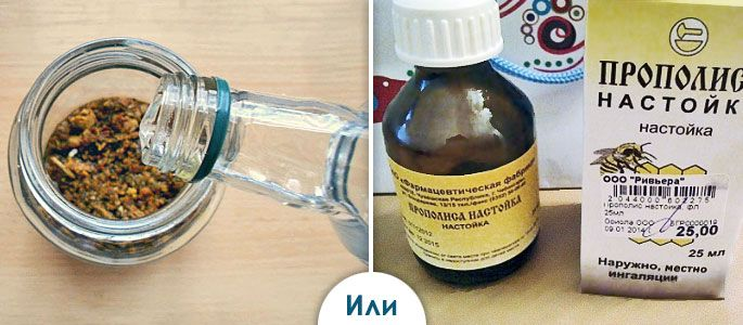 Для лечения фарингита используют спиртовую настойку прополиса, приготовленную в домашних условиях или приобретенную в аптечной сети (на фото)