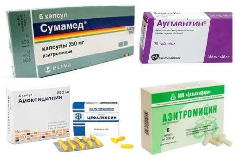 Эффективные лекарства от горла в виде антибиотиков
