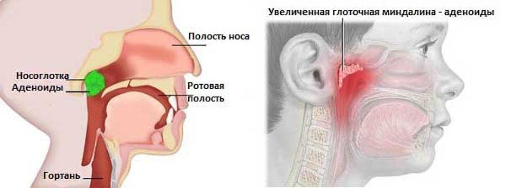 Главная задача глоточной миндалины – не допустить проникновения инфекции в нижние отделы дыхательной системы