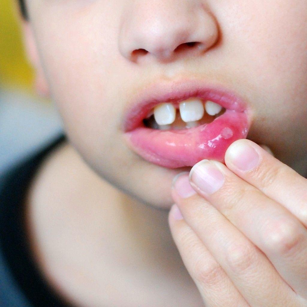 Характерные высыпания в виде везикул при герпесной инфекции сначала поражают полость рта (на фото) и только при тяжелом течении инфекционного процесса распространяются на стенки глотки и миндалины