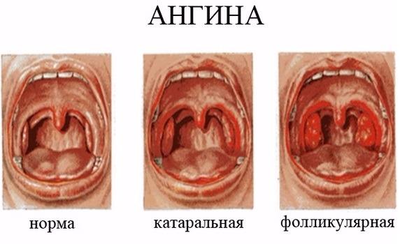 Как видно на фото и видео, каждый тип тонзиллита имеет характерные особенности