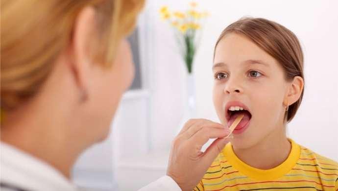 Лакунарная ангина у ребенка – это инфекционно-воспалительное заболевание носоглотки с гнойным поражением небных миндалин и характерными клиническими проявлениями