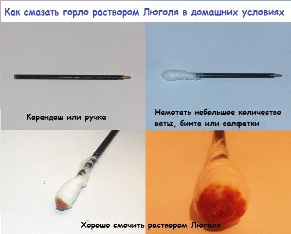 Люголь детям при ангине раньше наносили турундами, сделанными своими руками с помощью карандаша