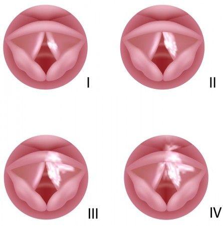 На фото схематично изображены стадии развития рака верхних дыхательных путей