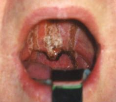 На фото слизистая глотки после химического ожога кислотами