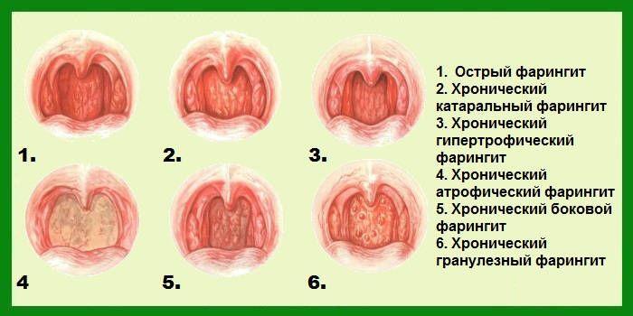 Определить характер заболевания можно, осмотрев горло малыша