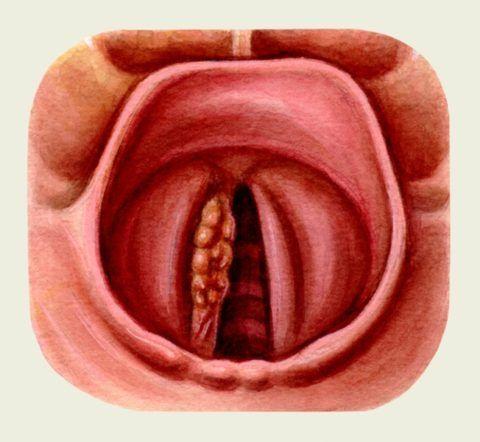 Поражение правой голосовой складки опухолевым процессом.