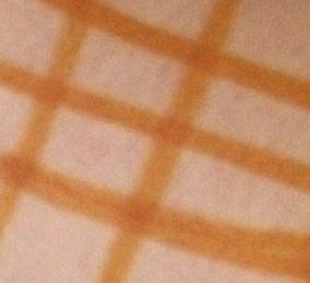 Правильная йодовая сетка имеет приблизительно равный размер ячеек