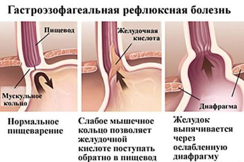 При ГЭРБ ослабляется мышечное кольцо, которое способствует выходу в пищевод желудочного сока