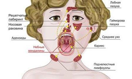 Пути распространения воспалительного процесса при хроническом аденоидите