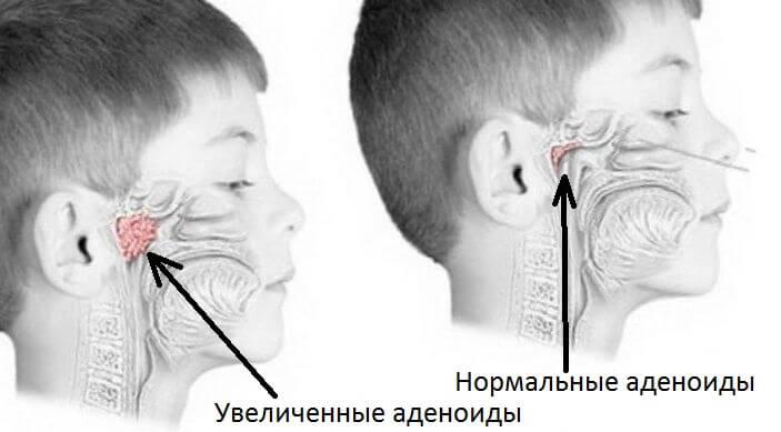 Как лечить аденоиды у ребенка 2 года в домашних условиях