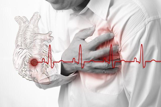 Сердечнососудистые заболевания занимают первое место среди всех причин смертности.