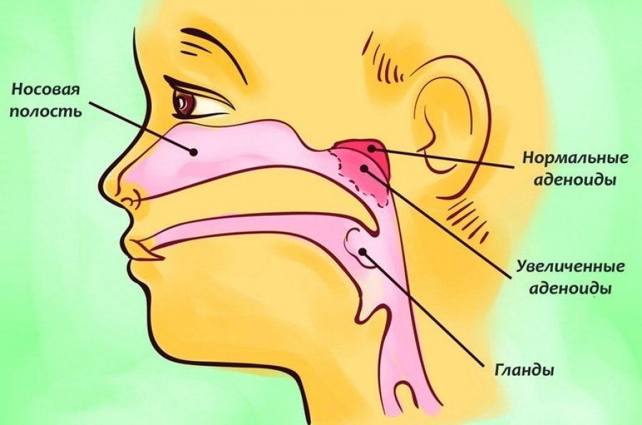 Увеличенные аденоиды находятся на задне-верхней стенке носоглотки (на фото) - они не видны при обычном осмотре зева, а уточнить их структуру и размеры может только врач- отоларинголог