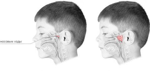 Увеличенные глоточные миндалины перекрывают носовые ходы и мешают полноценному дыханию
