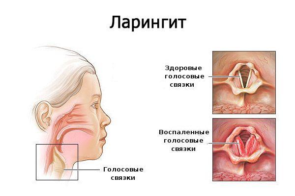 Визуальное отличие между здоровыми и воспаленными голосовыми связками