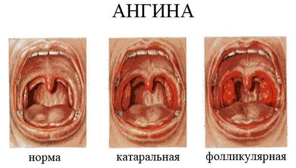 Значительная гипертрофия и покраснение небных миндалин – признак ангины.