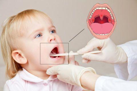 Чаще всего навязчивый частый горловой кашель у ребенка вызван активным воспалением структур глотки (на фото)