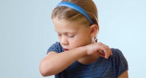 Частый раздражающий кашель - постоянный признак разрастания аденоидов в носоглотке ребенка