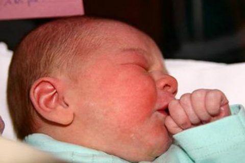 Для младенцев стрептококк наиболее опасен и при первых признаках требуется незамедлительный осмотр врача.