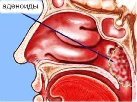 Если болезни носоглотки повторяются – отмечается компенсаторное постепенное разрастание аденоидов – их гипертрофия (на фото)