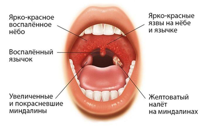 Белое горло - при каких болезнях появляются белые