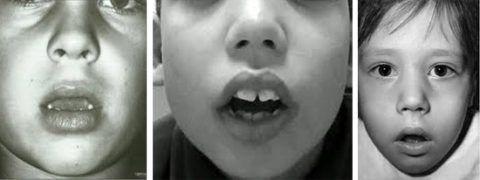 Фото. Характерное лицо при аденоидах