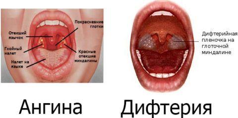 Гнойничок на горле не всегда свидетельствует о наличии ангины, иногда это признак дифтерии.