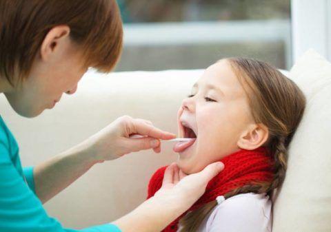 Характерным симптомом скарлатины является «малиновый язык» с гипертрофированными сосочками и признаки гнойной ангины