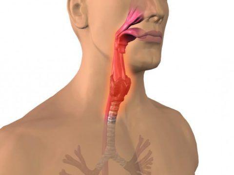 Ларингит – это воспаление слизистой гортани, вызывает першение и охриплость голоса.