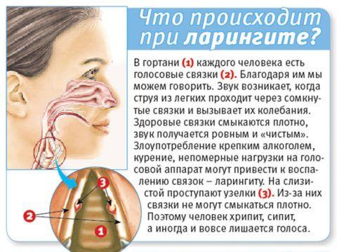 Ларингит – это заболевание, вызывающее нарушение работы голосовых связок.