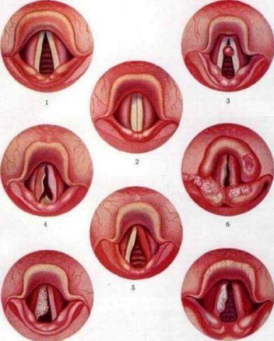 На фото представлены различные ларингоскопические картины при раке гортани.