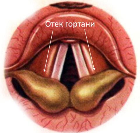 На фото схематически изображен гортанный отек при ларингоскопии