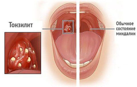 Очаги поражения при тонзиллите наблюдаются в основном на миндалинах.