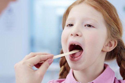 По внешнему виду и характерным изменениям высыпаний в горле, можно определить, каким возбудителем вызван инфекционный процесс, и назначить правильное лечение