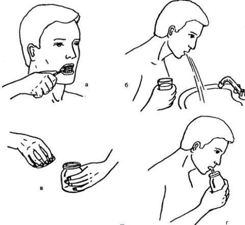 Порядок действий при сборе мокроты: а) чистка зубов; б) полоскание горла; в) открываем стерильный контейнер; г) сплевываем отделяемое, полученное при откашливании