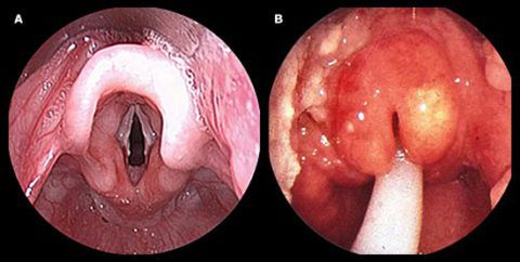 При аллергии болит горло во всех случаях проявления болезни, кроме отека Квинке