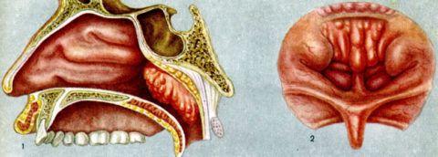 При больших размерах аденоидов миндалина становиться вида, даже при осмотре горла – она отдаленно напоминает опухолеподобное образование (на фото) и пугает родителей