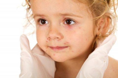 При кори, краснухе и ветряной оспе кроме характерной сыпи на коже достаточно часто отмечается появление энантемы на слизистой носоглотки