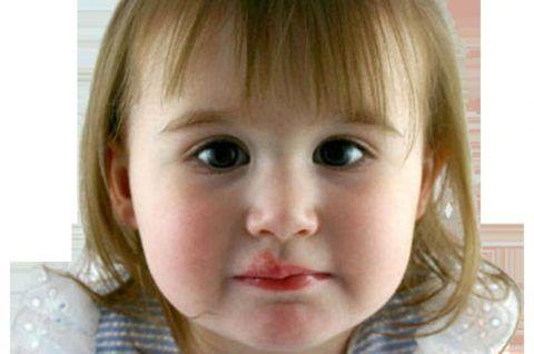 Причиной распространения сыпи на горло при герпетическом стоматите считается тяжелое течение болезни и стойкое снижение иммунитета