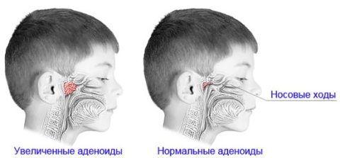 Расположение миндалины, делает факт ее разрастания опасным для здоровья