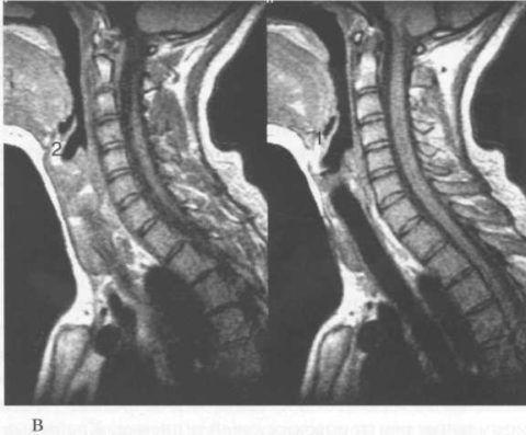С помощью аппарата мрт можно выстроить трехмерное изображение любого органа для более тщательной его диагностики
