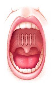 Язычок расположен между небными дужками по центру горла