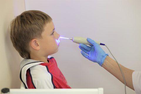 Физиотерапевтическое лечение: тубус-кварц носа